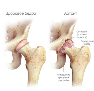 csípő coxarthrosis artrózisa, mint kezelése