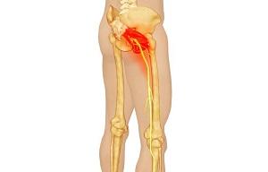 csípő tünetek kezelése 1. fokozatú csípőízületi gyulladás