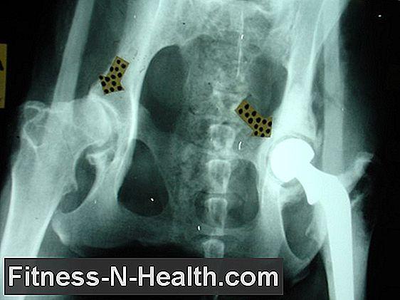 csípőgyulladás és kezelés