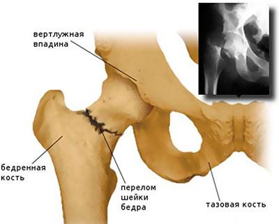 csípőízület bilaterális coxarthrosis 1. fokú kezelése)