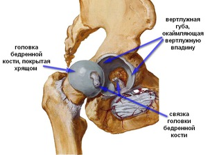 a csípőízület coxarthrosis komplex kezelése