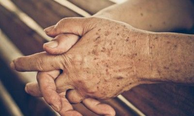 henna ízületi kezelés