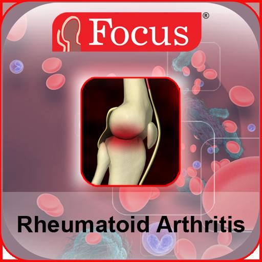 rheumatoid arthritis, mint a kezelés torna a vállízületek fájdalmának enyhítésére