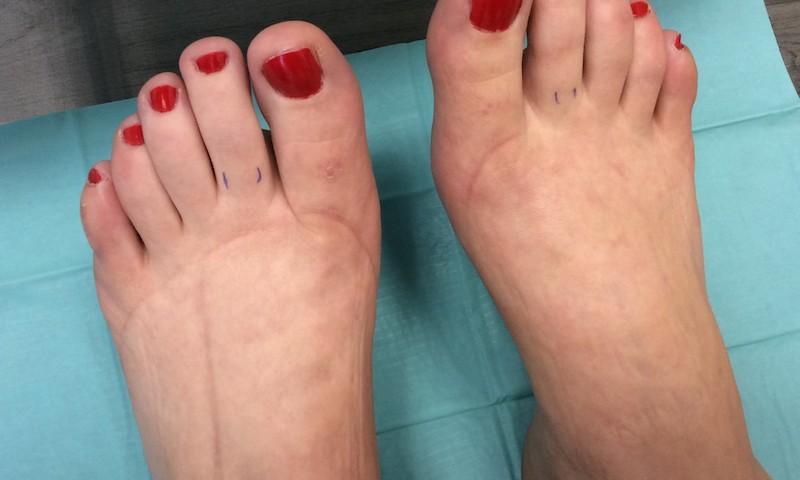 dagadt láb kezelése)