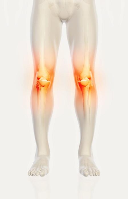 a térd sérülések tünetei a sportolókban)