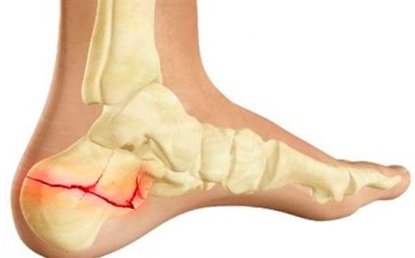 szubtalaris ízületi tünetek sólelepek kezelése artrózis