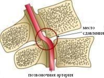 A nyaki gerinc csontritkulása - Dystonia July
