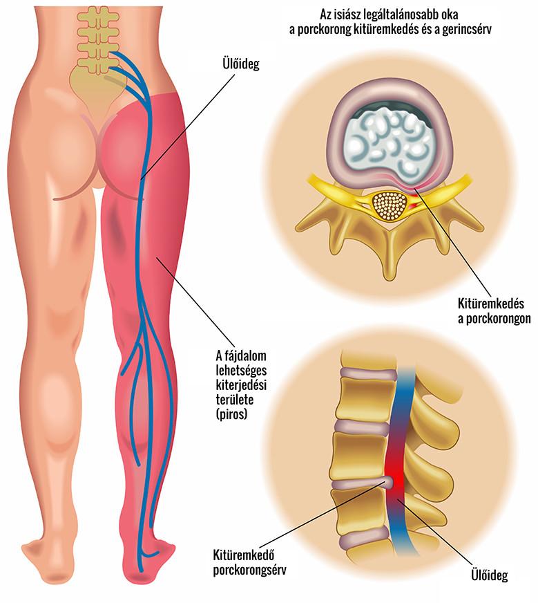 térdfájdalom a csípőízületre sugárzik
