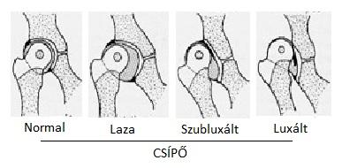 éles húzási fájdalom a csípőízületben)
