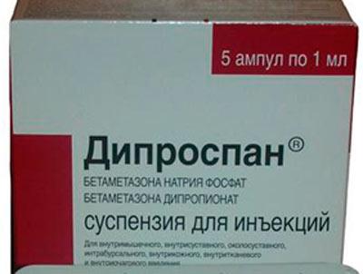 diprospan artrosis kezelés)