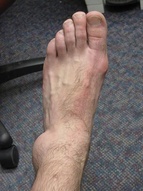 duzzadt bokaízület az egyik lábon