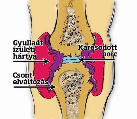térdízület osteoarthritis kezelése és a betegség mértéke