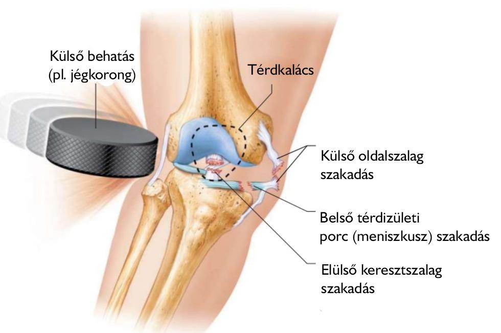 jégkorong térd sérülések ízületi gyulladás gyógyítása