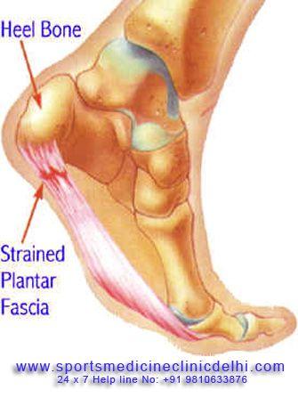 csípőfájdalom a láb elforgatásakor)