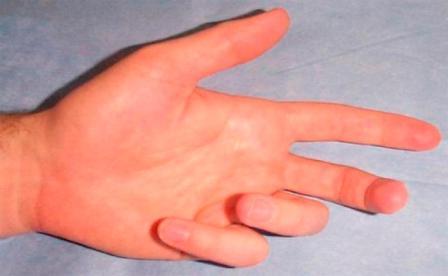 varrásos fájdalom az ujjak ízületeiben
