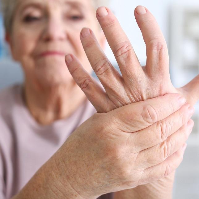 az ujj rheumatoid arthritis)