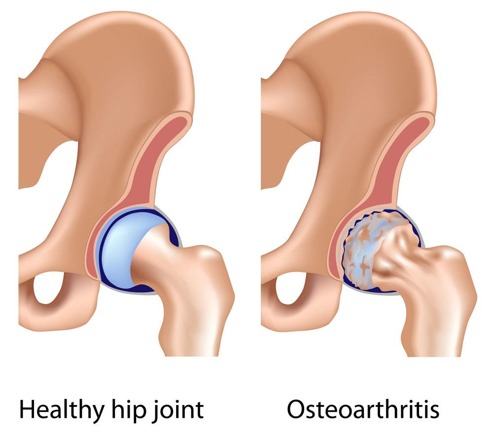 csípő coxarthrosis és kezelése