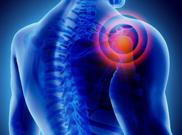 vállfájdalom tünetei és kezelése bokakötések duzzanata