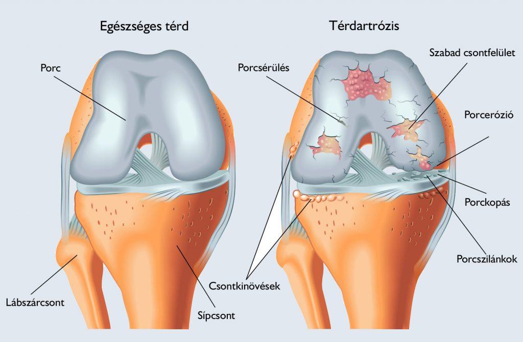 értágító a csípőízület artrózisában