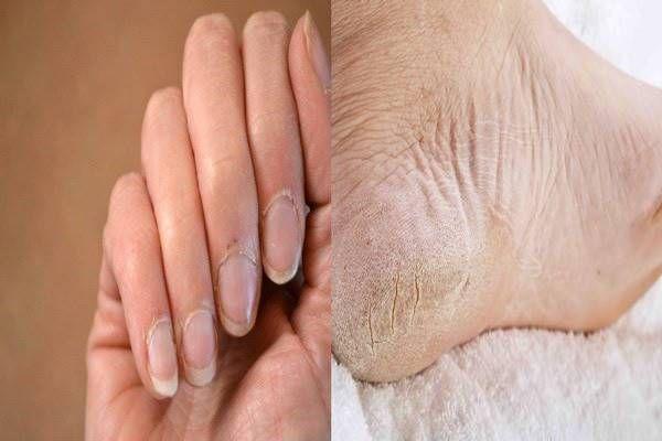 sarok osteoarthritis kezelés