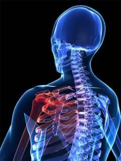 a vállízület fokának artrózisa)