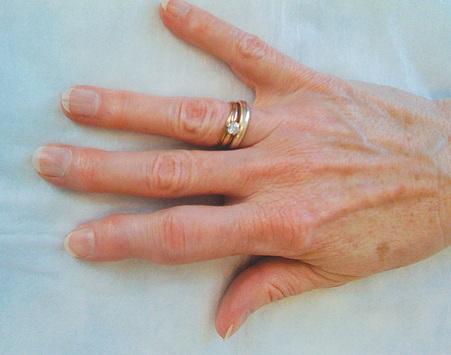 Az anguil ujjai: tünetek és különböző kezelések - Gyermekekben