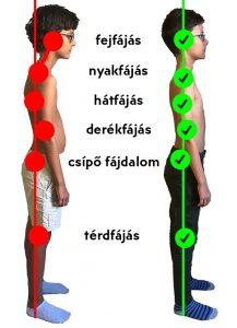 Mikortól mondható krónikusnak a hátfájás, és mit tehetünk ellene?