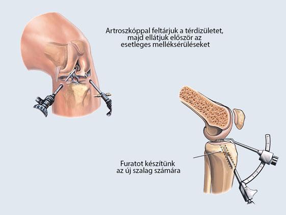 2. fokú térdízületi lézeres kezelés)