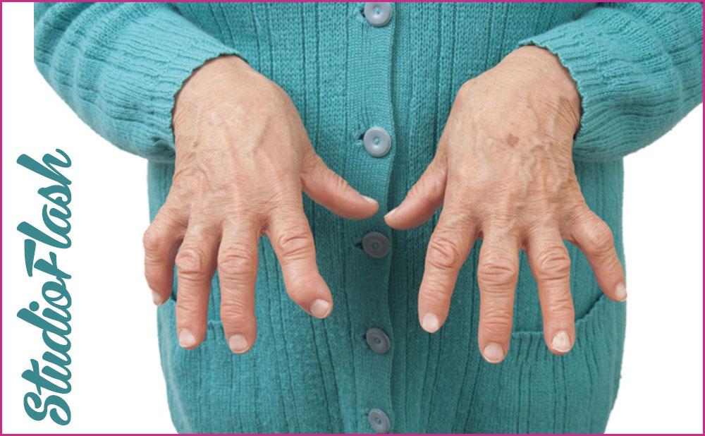 ízületi betegség kézkezelés