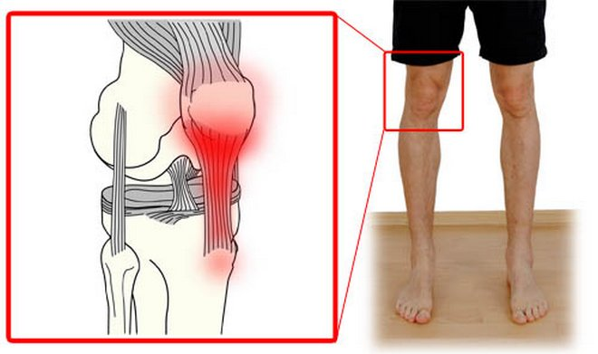 térdízületi kezelés mediális kollaterális ligamentumának törése)