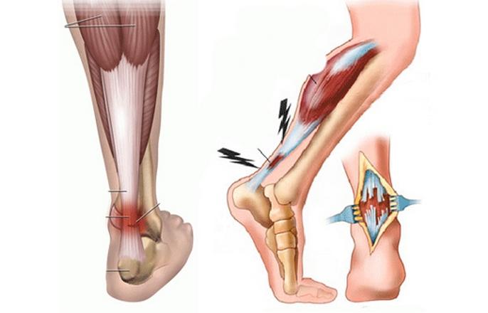 szilícium ízületi kezelés pajzsmirigy alulműködés izületi fájdalom