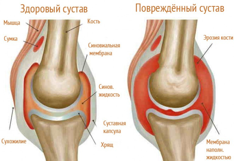 a könyök- és a vállízület fájdalma gyógyítja a hátfájást