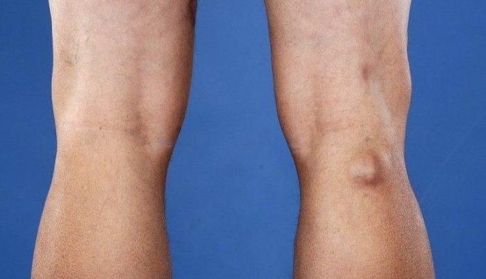fájdalom a csípőízületeken nyújtáskor