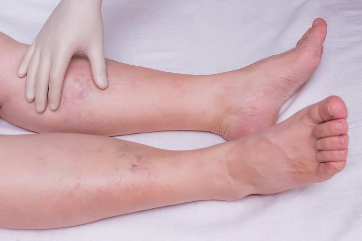 fájdalommentes boka sérülés