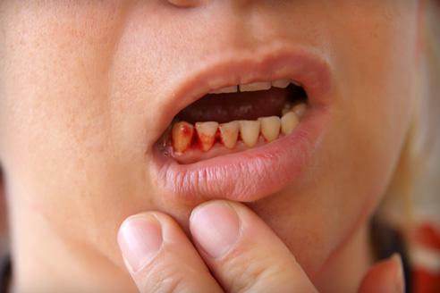 fájhatnak az ízületek a fogak miatt térdcsont artrózis
