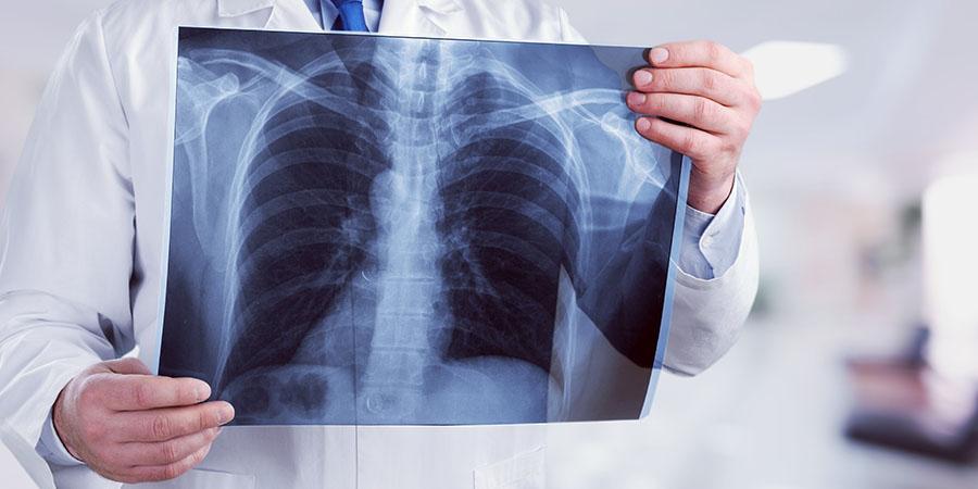 Tüdőgyulladás – Fontos tudnivalók!   BENU Gyógyszertárak
