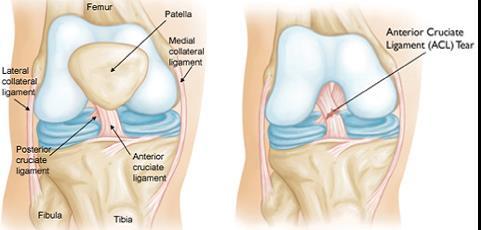 Térdfájdalom: otthoni gyógymódok a fájdalom enyhítésére - EgészségKalauz