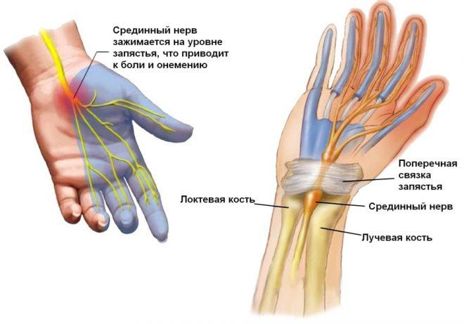 ha a bal kéz ízülete fáj kenőcsök, amelyek enyhítik a térdízület fájdalmát