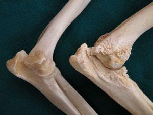 ha a könyökízület csontja fáj