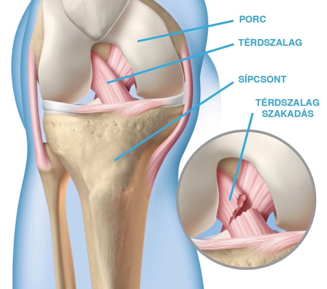 hogyan fejleszteni a térdét egy sérülés után a térd ízületi gyulladása enyhíti az akut fájdalmat