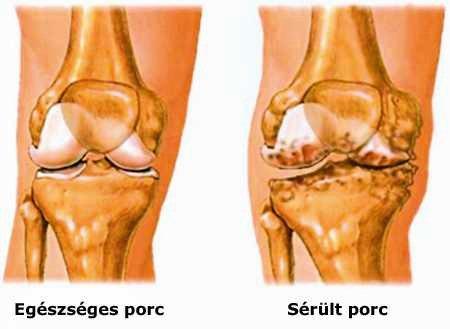 hogyan segítjük az ízületeket az artritiszben