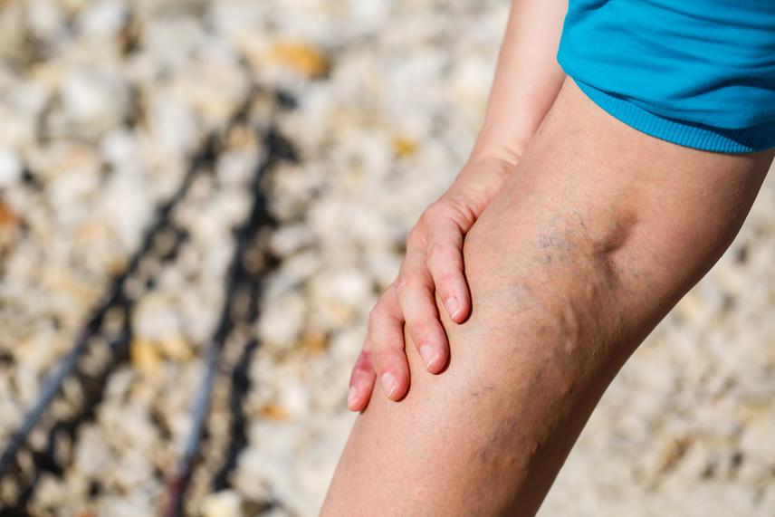 ízületi fájdalom kezelésére használt gyógyszerek tegye, ha fáj a könyökízület