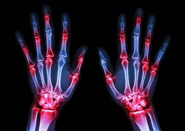 hogyan kezeljük a rheumatoid arthritis 60 éves vagyok)