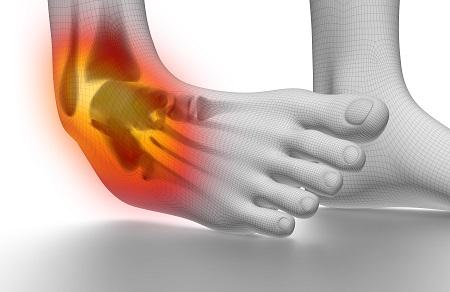kis ízületi fájdalom gyermek osteoarthritis só kezelésére