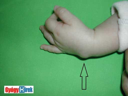 rozsakert-egervar.hu -Traumatológia, kézsebészet