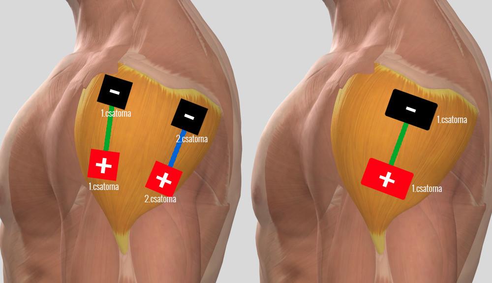 hogyan lehet kezelni a vállízület sprainjét