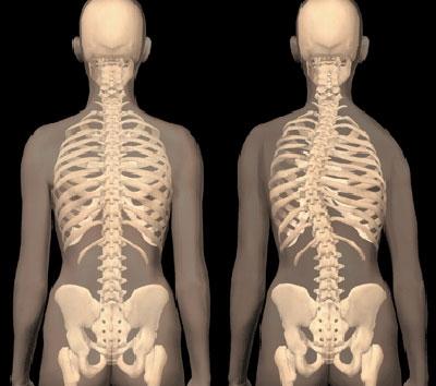 idiopathiás csípőízület diagnosztizált térd artrózisban