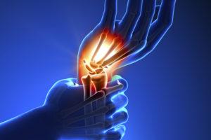 időszakos fájdalom a kezek ízületeiben