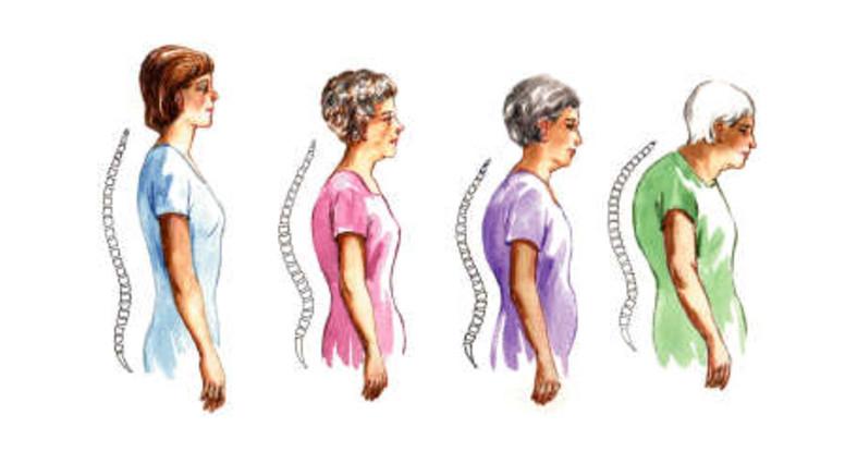 hátfájás, amely a csípőízületre terjed ki a bokaízület tüneteinek szubluxálása és kezelése