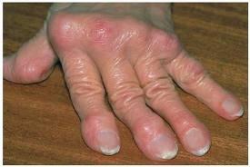 melegítő kenőcsök a lábak ízületeihez ár hamis fájdalom az összes ízületben